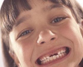<!--:es-->Los cuidados con los dientes son más importantes durante la niñez<!--:-->