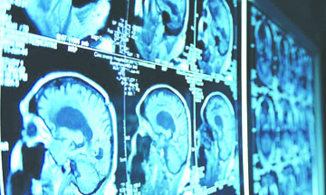 <!--:es-->¿Cómo destruimos nuestro cerebro a diario sin saberlo?<!--:-->