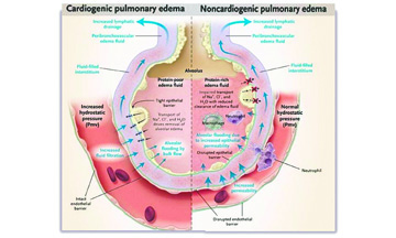 Cuál es la causa de que haya agua en los pulmones