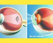 La Nueva Tecnología hace que la Cirugía de Cataratas y Carnosidad sea más Accesible